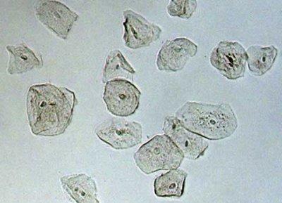 Mikroskopta Ağız İçi Epitelinin İncelenmesi